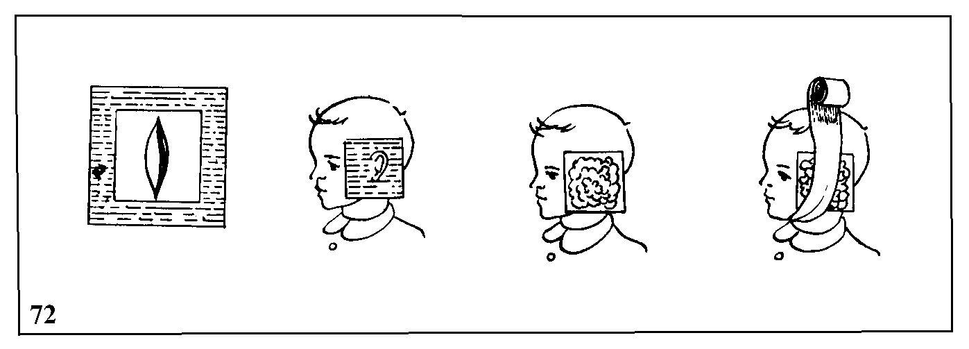 Как сделать компресс