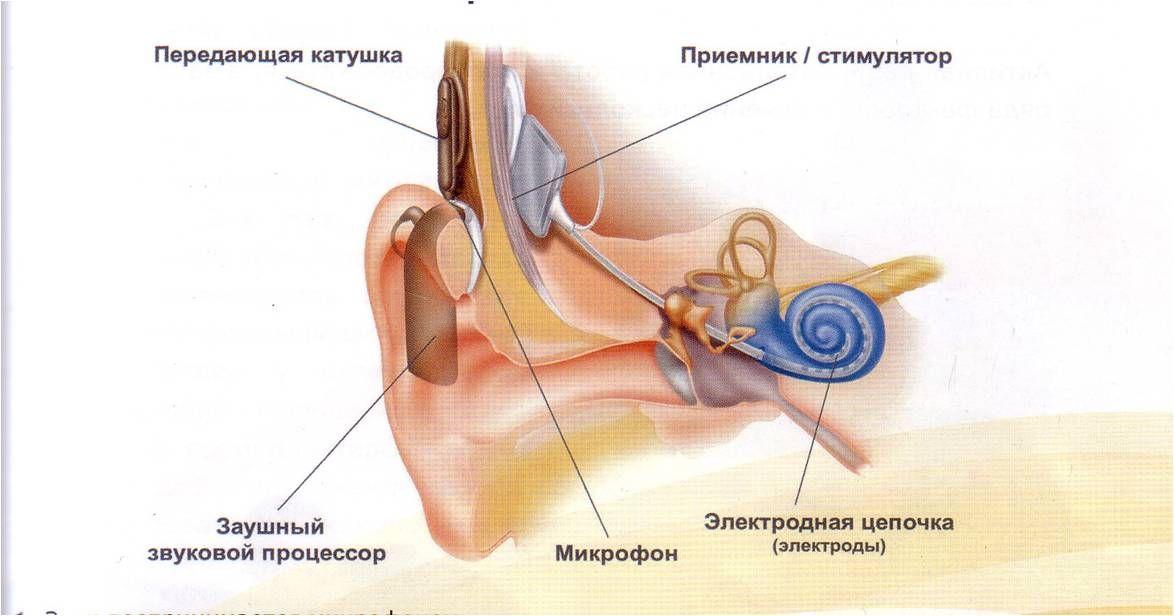 Кохлеарная имплантация принцип действия и описание