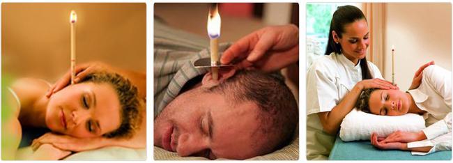 Свечи в ухо
