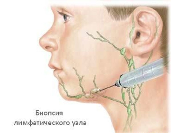 Биопсия воспаленного узла
