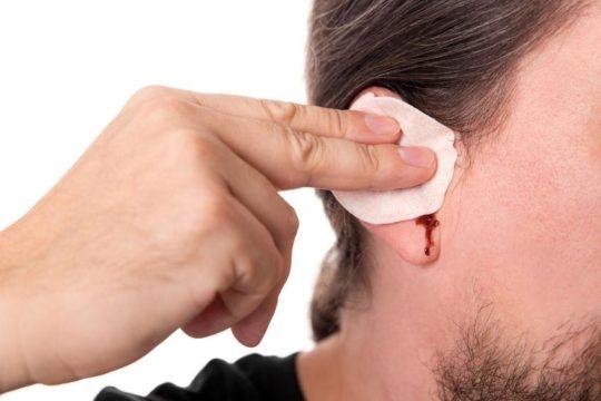 Кровь из уха - причины и лечение кровотечений ушей