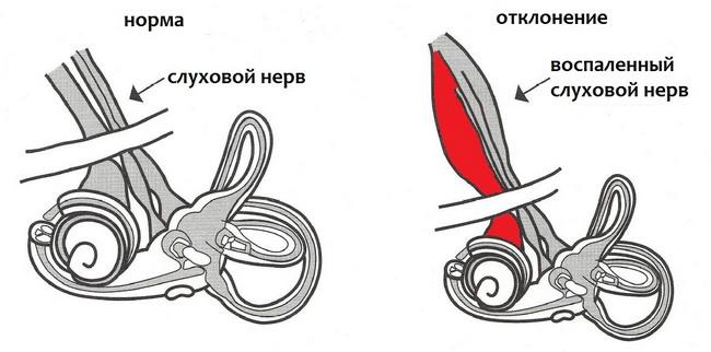Патология слухового нерва