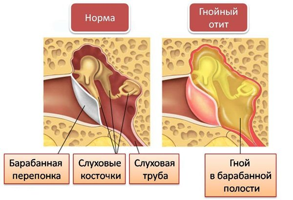 """Ушные капли """"Софрадекс"""": инструкция по применению"""