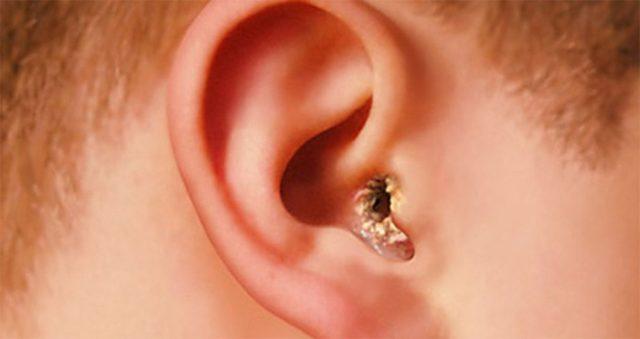 О чем может сказать зуд в ушах