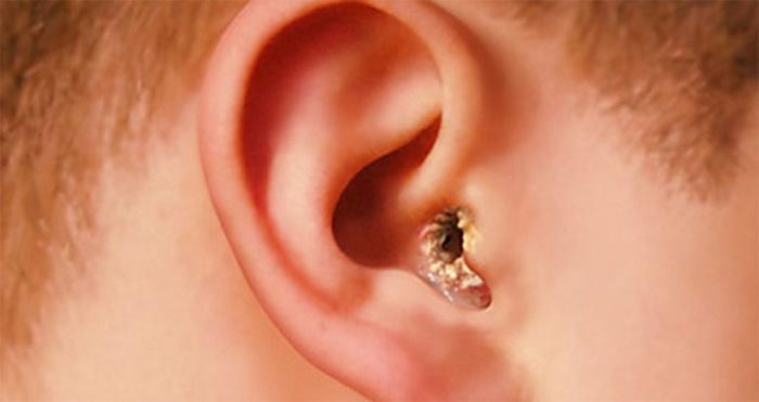 Отомикоз в ухе