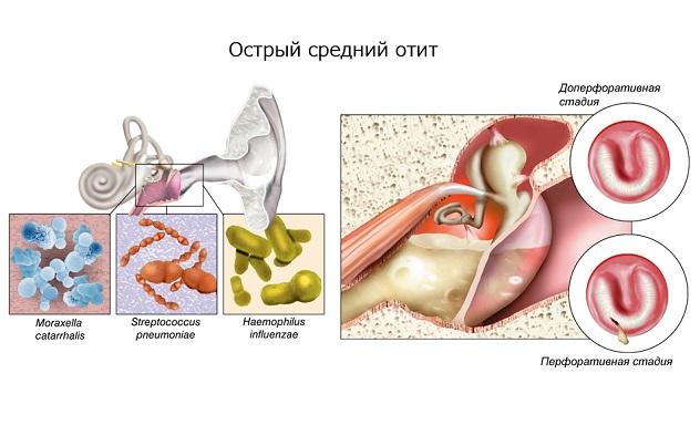 Заболевание уха